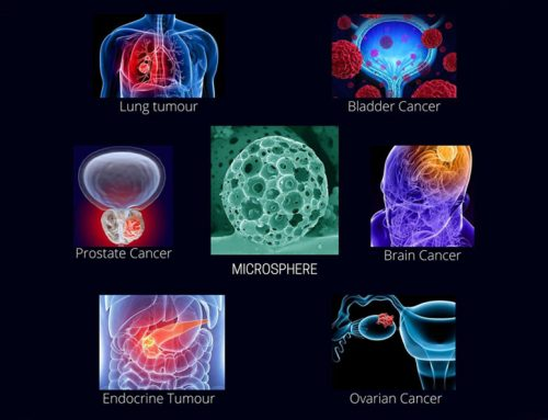 Microspheres in Cancer Therapy